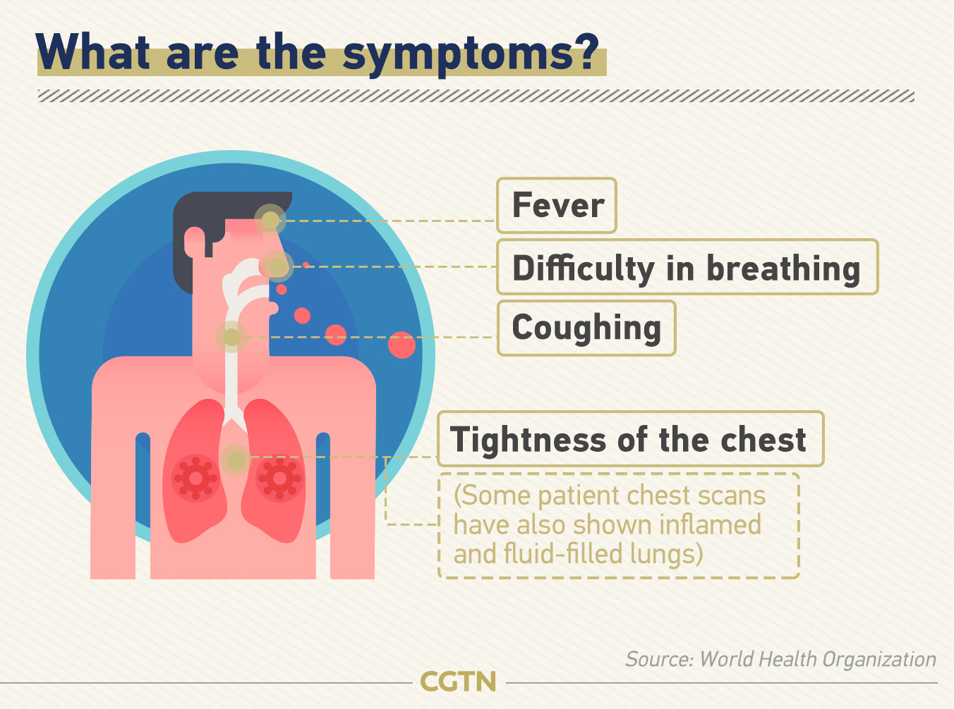 coronavirus symptom - photo #27