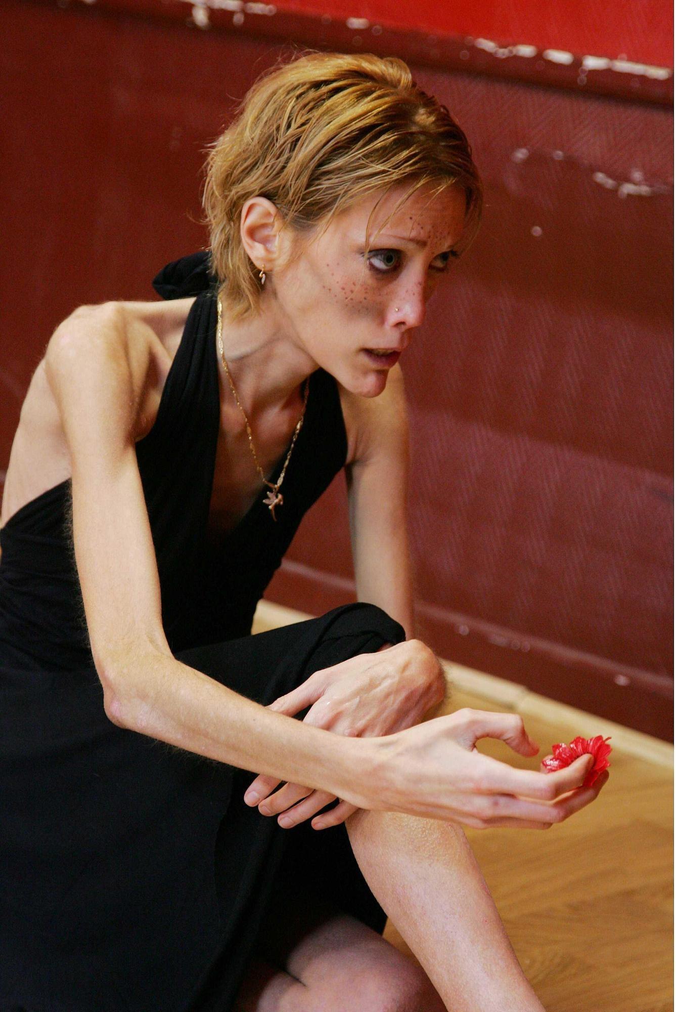 Isabelle caro no anorexia