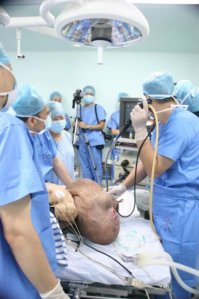 'Elephant' man struggles to lead new life after tumor ... Huang Chuncai