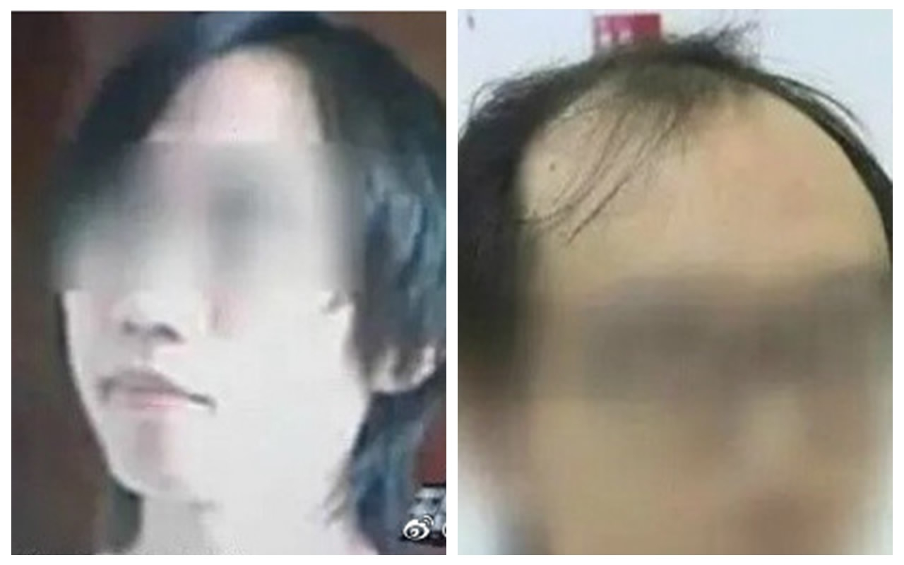 Is Chinas Youth Experiencing A Hair Loss Crisis Cgtn